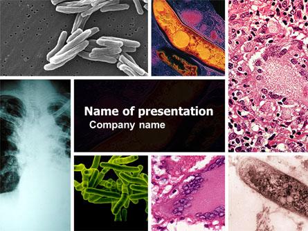 tuberculosis powerpoint presentation