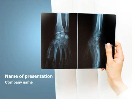 xray photography presentation template for powerpoint and
