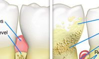 Periodontal Tooth Presentation Template