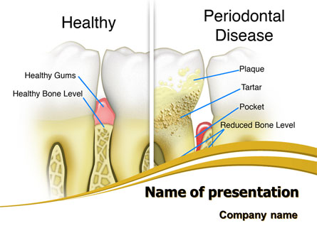 Periodontal Tooth Presentation Template, Master Slide