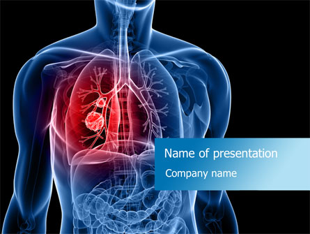 lung cancer presentation template for powerpoint and keynote | ppt, Powerpoint templates