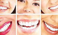 Dental Smile Presentation Template