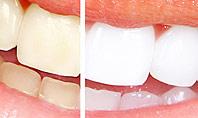 Teeth Whitening Presentation Template