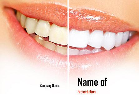 Teeth Whitening Presentation Template, Master Slide