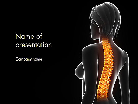 Female Spine Anatomy Presentation Template, Master Slide