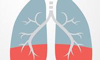 Asthma Concept Presentation Template