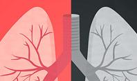 Smoker Lungs Presentation Template