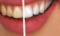 Woman Teeth Before and After Whitening Presentation Presentation Template