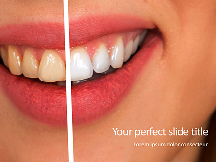Woman Teeth Before and After Whitening Presentation Presentation Template, Master Slide